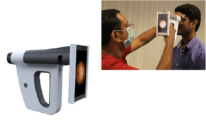 Remidio's Fundus-ON-Smartphone